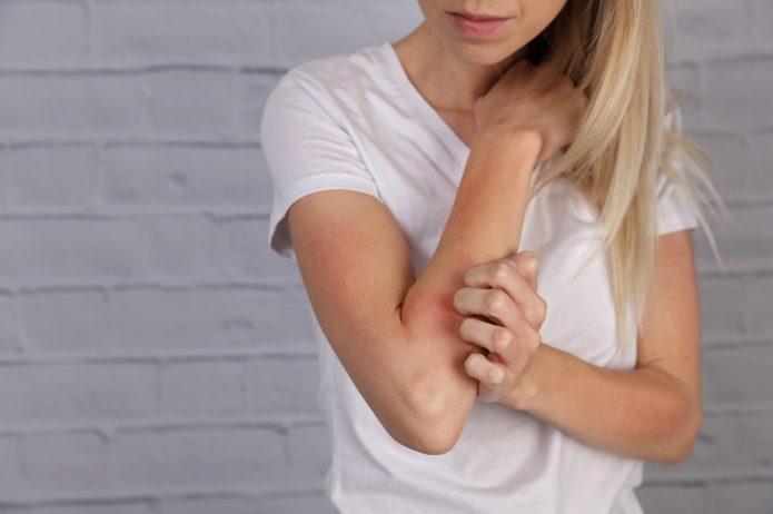 Alergie u osób dorosłych – skąd się biorą?