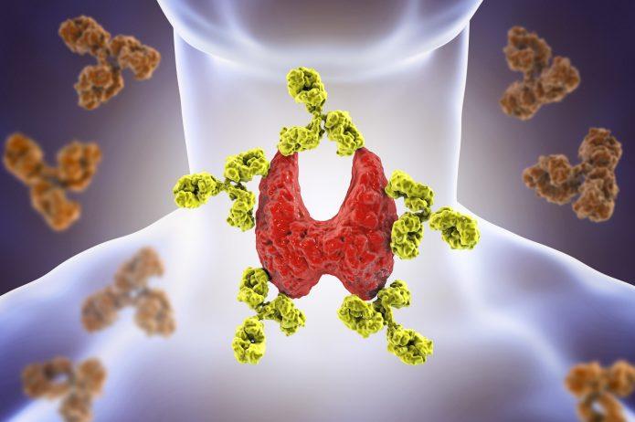 Choroba Hashimoto – przyczyny, objawy, badania
