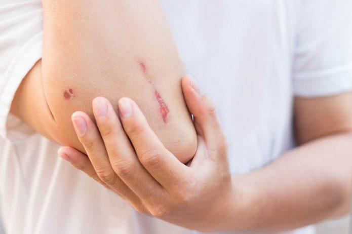 Pielęgnacja rany – oto praktyczne wskazówki!