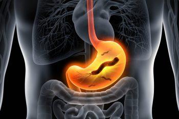 Helicobacter pylori - jak można się zarazić, objawy zakażenia, jak leczyć?