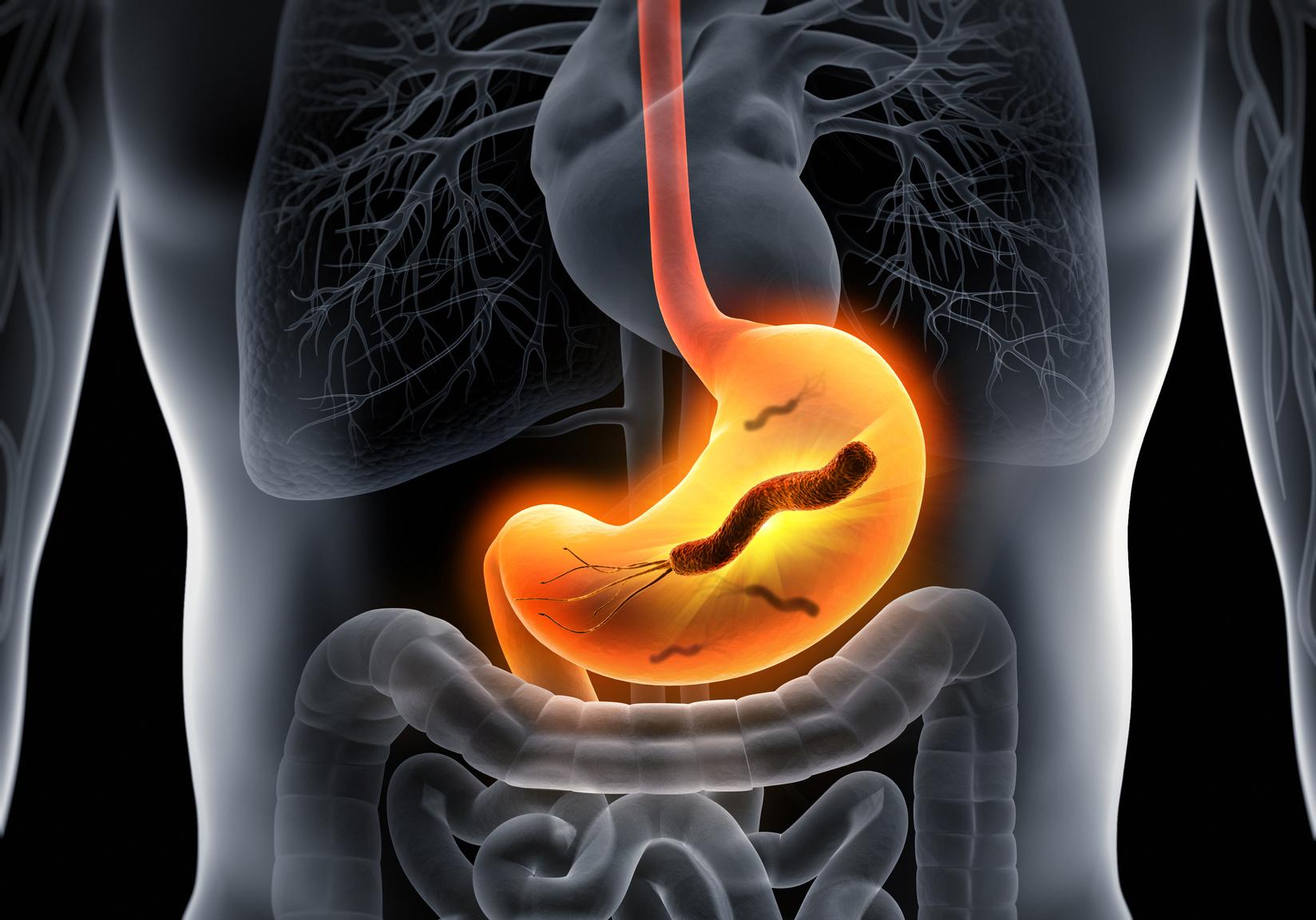 Helicobacter pylori – jak można się zarazić, objawy zakażenia, jak leczyć?
