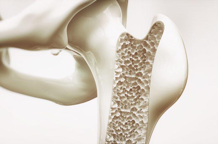 Osteoporoza – objawy, leczenie, profilaktyka