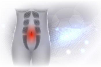Rozstęp mięśni brzucha po porodzie