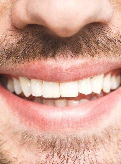 Jaką metodę wybrać, aby wybielić zęby?