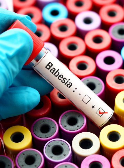 Babeszjoza – charakterystyka, diagnostyka i leczenie