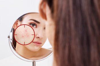 Jak przygotować cerę trądzikową pod makijaż?