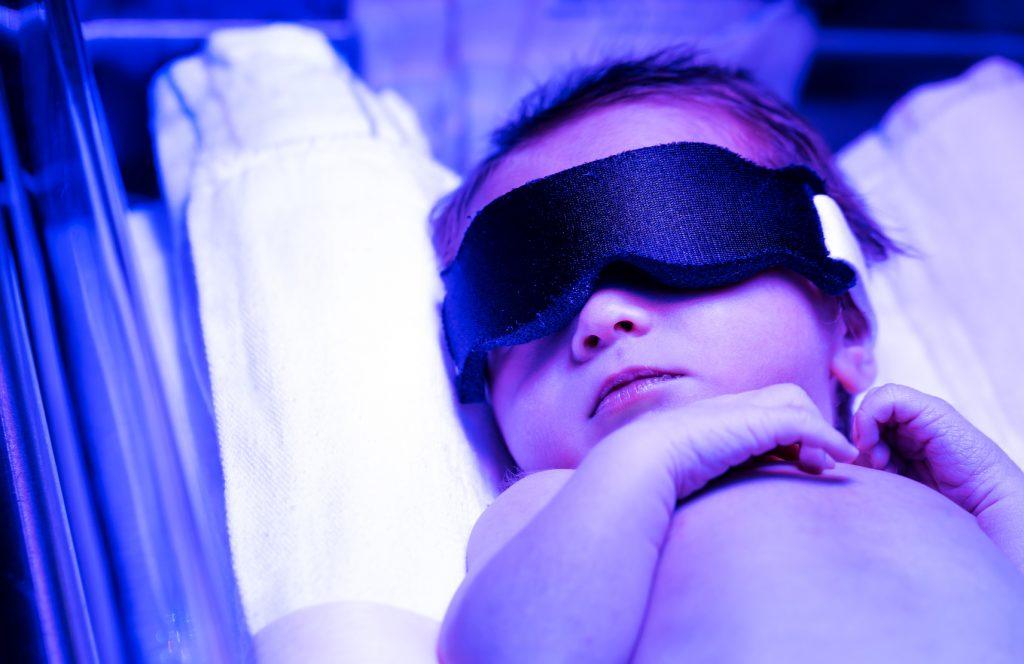 Noworodek poddany fototerapii