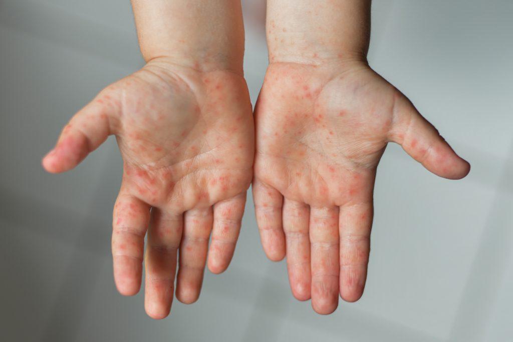 Wysypka na dłoniach