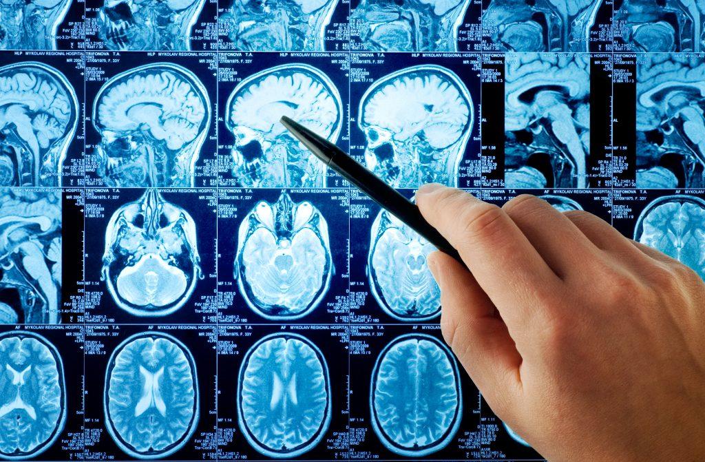 Wyniki rezonansu magnetycznego głowy