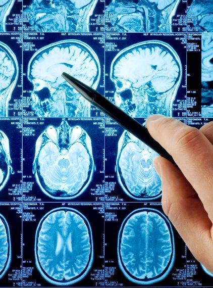 Rezonans magnetyczny głowy – co wykrywa?