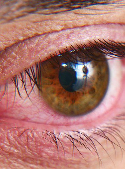 Zespół suchego oka – jak go leczyć?